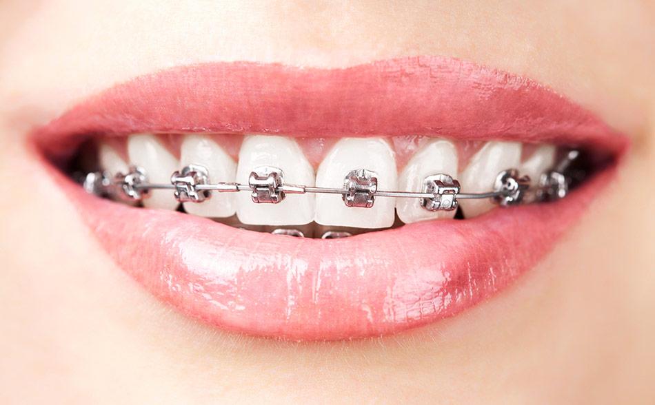 Clínica Dental Calas Cádiz Ortodoncia