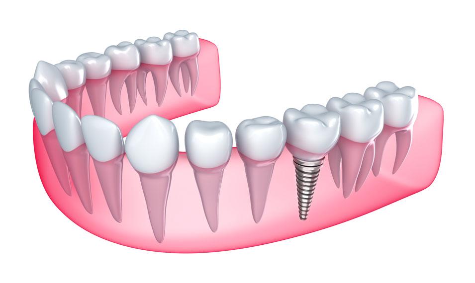 Implantes Dentales Clínica Dental Calas: tu dentista en Cádiz