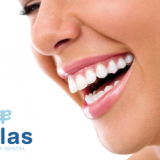 Blanqueamiento dental cadiz