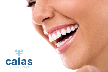 foto-blog_Blanqueamiento_dental-01.png
