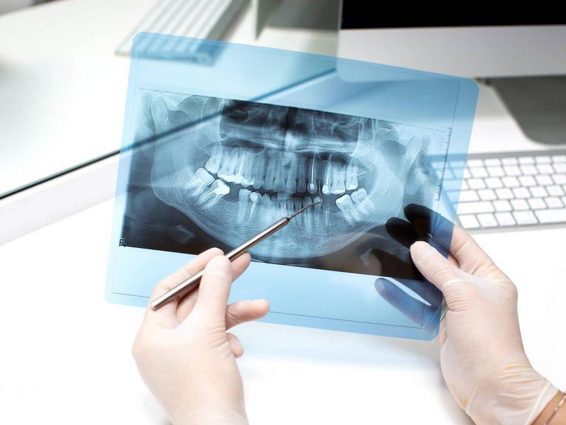 Tratamiento dental endodoncia